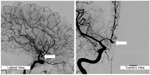 radiologist in mumbai - varicose-veins - dr tejas Dharia
