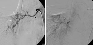 Bronchial Artery Embolization (BAE)
