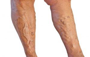 varicose-veins-treatment-dr tejas dharia