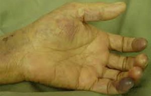 deep vein thrombosis Dr tejas Dharia