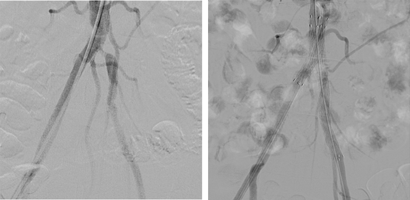 Peripheral Angiography and Angioplasty Treatment in Mumbai   Dr Tejas Dharia